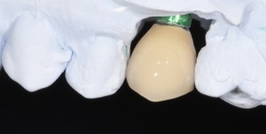 dental implant crown prior to fitting in the mouth