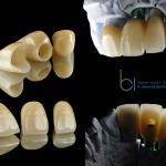 Laboratory work stages of dental implants