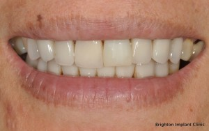 Is dental implant treatment painful?