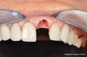 Dental Implant Treatment Using a provisional crown
