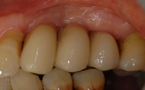 Follow up 4 years after surgery for Three missing teeth in a row