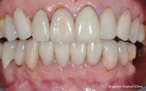 Do you need dental implant treatment?