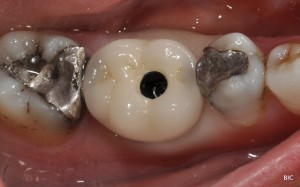 implant crown in position
