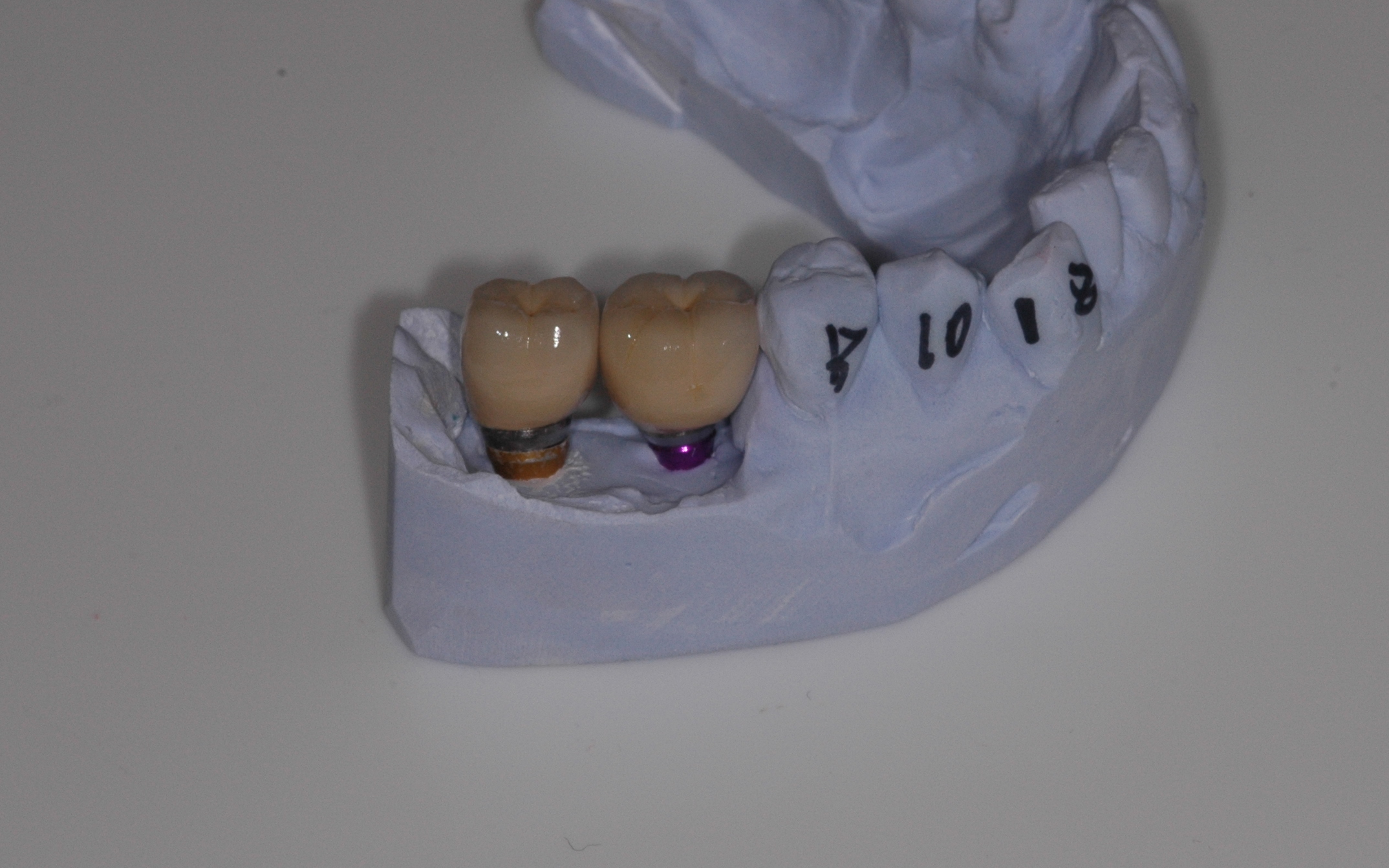 Cement Retained Dental Implant Crowns Dental Implants