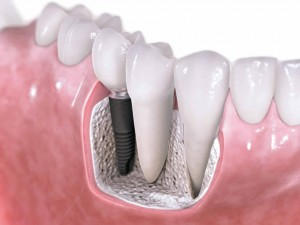 Dental Implants in Cosmetic Dental Work