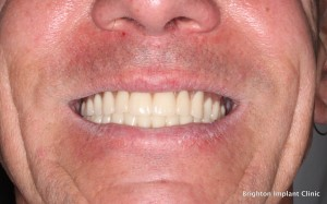Cosmetic dentistry after dental implants