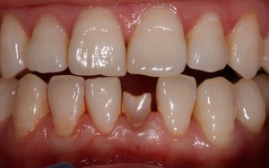 Retained milk tooth photos