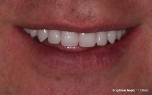 Teeth-on-4 dental implant treatment