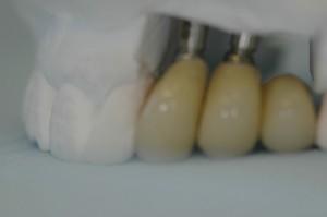 Three missing teeth in a row