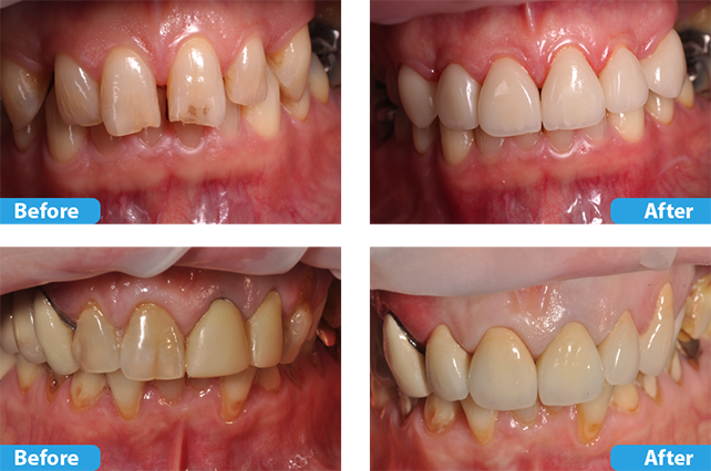 porcelain crowns and veneers 2