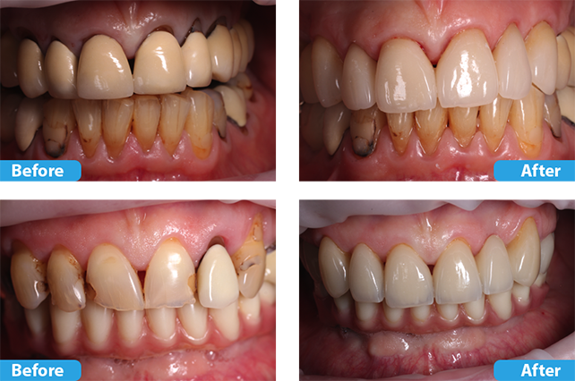 porcelain crowns and veneers 3