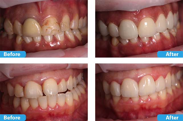 porcelain crowns and veneers 4