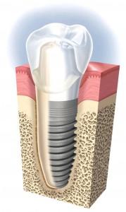 implant dental treatment