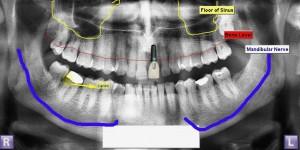 Treatment plan illustration for dental implants