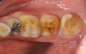 old ceramic crowns removed