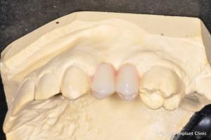 premolar teeth in position