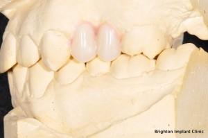 two smaller premolar teeth in position