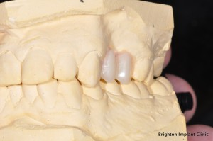 artificial teeth on plaster model