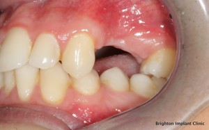 bone loss noted due to teeth being removed 8 years ago