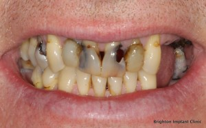decayed teeth affected by poor oral hygiene and high sugar intake