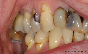 multiple teeth were infected and needed extracting