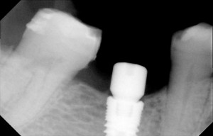 one stage implant, healing abutment attached immediately following surgery