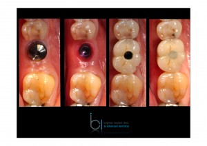 Dental implant treatment photographs