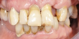 gum disease with recession