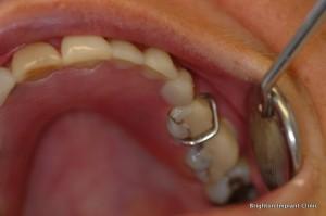 Dental Teeth Implants
