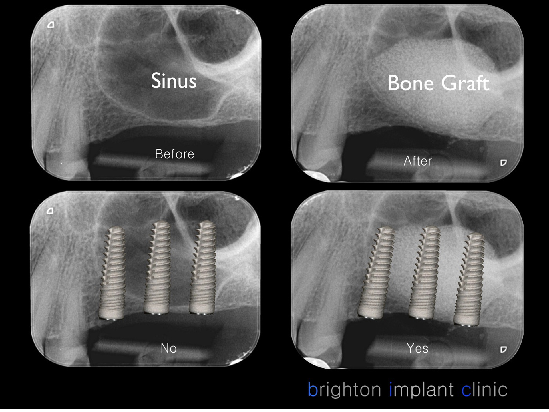 When do we need a sinus lift ?