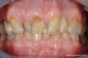 Tooth discolouration due to age not treatable by tooth whitening alone