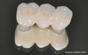 Cosmetic dentistry bridge made of zirconia