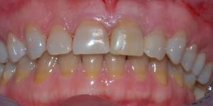 Tetracycline tooth discolouration