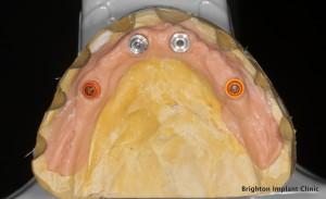 Position of dental implants on working models