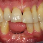 patient presented with tooth caused by sinus infection anterior aspect