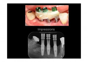 Cosmetic dentistry implants