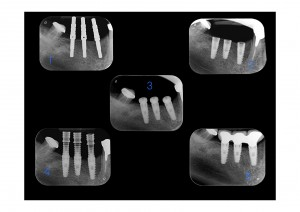 cosmetic dentistry implants stages