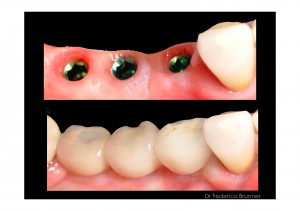 cosmetic dentistry implants in place