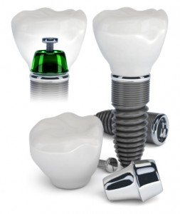 Dental implant with abutment and porcelain crown