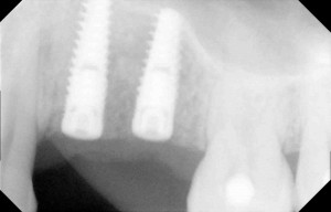 Dentists Implants