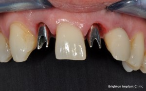 Dental Implant Teeth