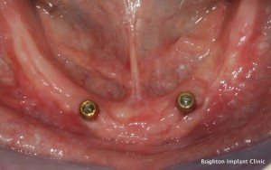 the dental implant denture will click onto the two dental implants as shown in this photo