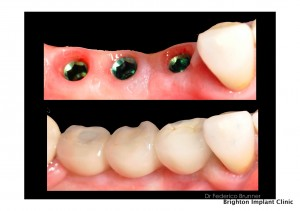 Dental Implants Abroad