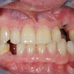 healing abutment on implant upper left missing canine replaced with implant