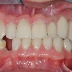 healing abutment on dental implant during the healing phase