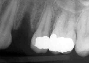 same day dental implant procedure