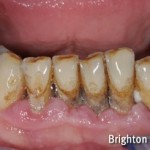 mobile lower teeth due to gum disease