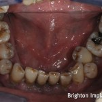 crowding of lower teeth can make cleaning more difficult which then leads to gum disease