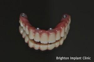 all on 4 bridge using acrylic teeth and titanium substructure