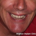 a new smile just two weeks after surgery